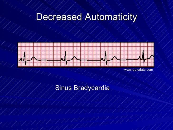 Decreased Automaticity Sinus Bradycardia www.uptodate.com