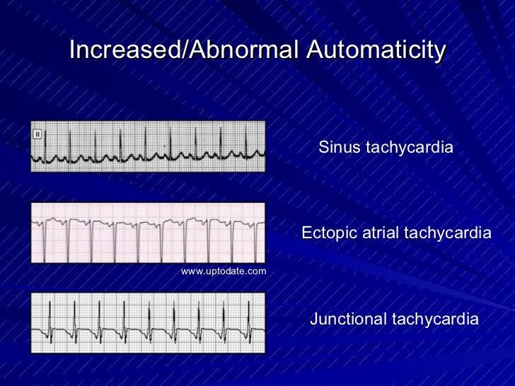 Increased/Abnormal Automaticity Sinus tachycardia Junctional tachycardia Ectopic atrial tachycardia www.uptodate.com