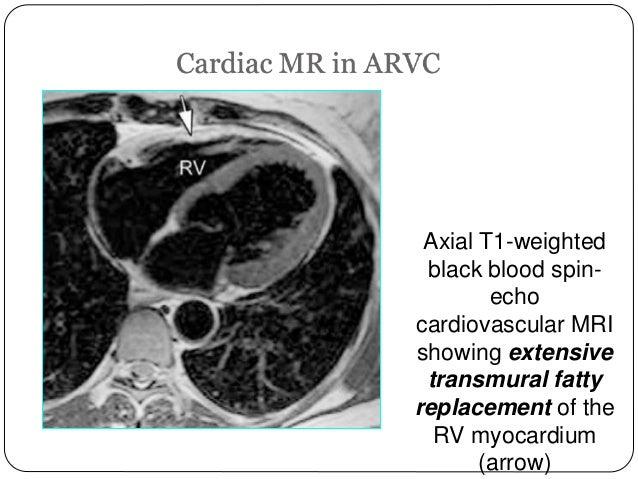ARVD (Arrythmogenic ri...