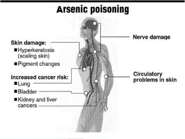 arsenic poisoning Arsenic is almost a by-word for poisoning, its easy availability from the 19th century to well into the 20th century, and symptoms resembling gastric conditions or food poisoning, made it a popular choice with poisoners photograph: william andrew/getty images giving talks about poisons often.