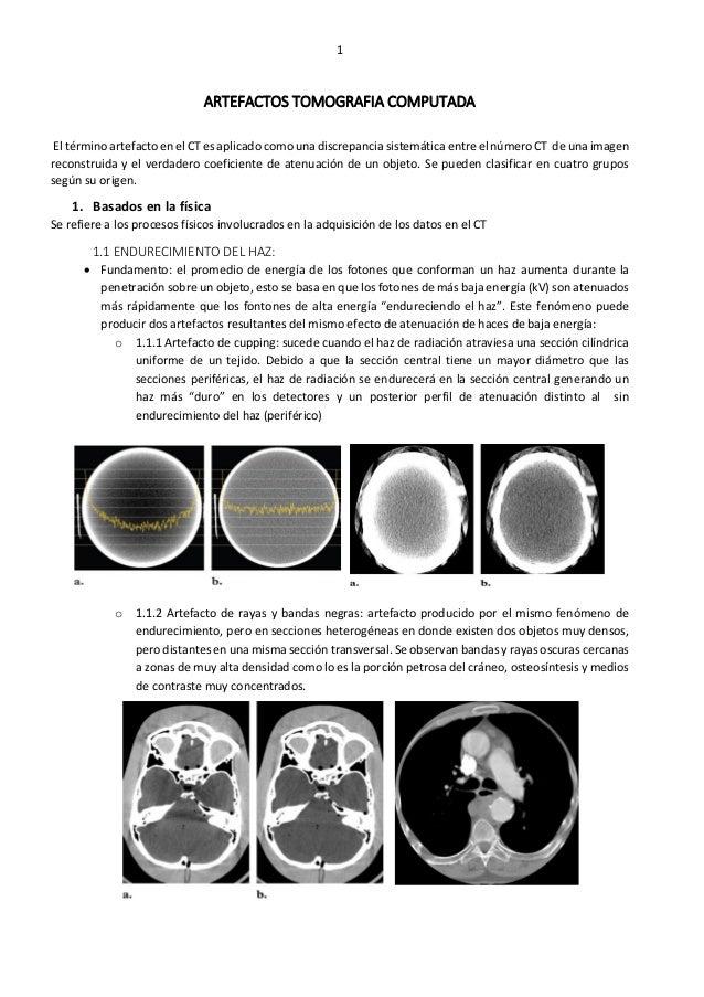 Artefactos en CT, ecografía, MRI y radiologia digital