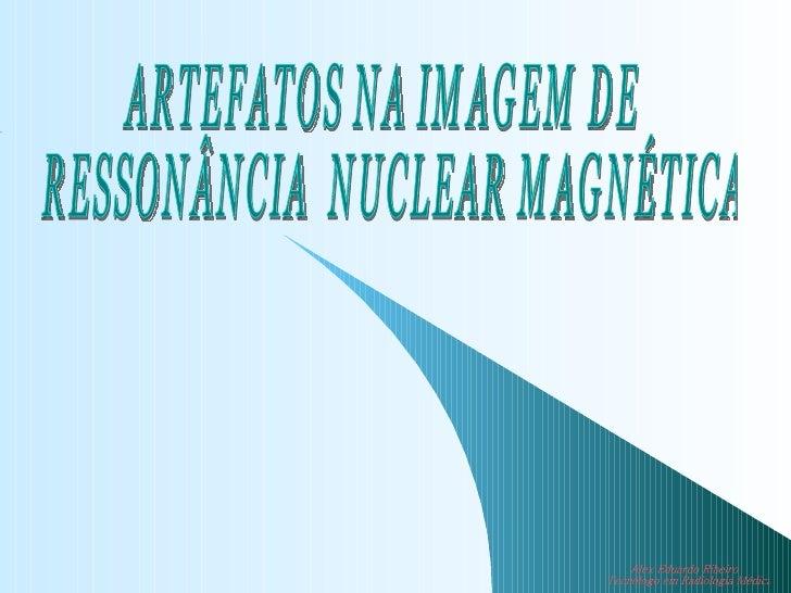 ARTEFATOS NA IMAGEM DE RESSONÂNCIA  NUCLEAR MAGNÉTICA Alex Eduardo Ribeiro  Tecnólogo em Radiologia Médica