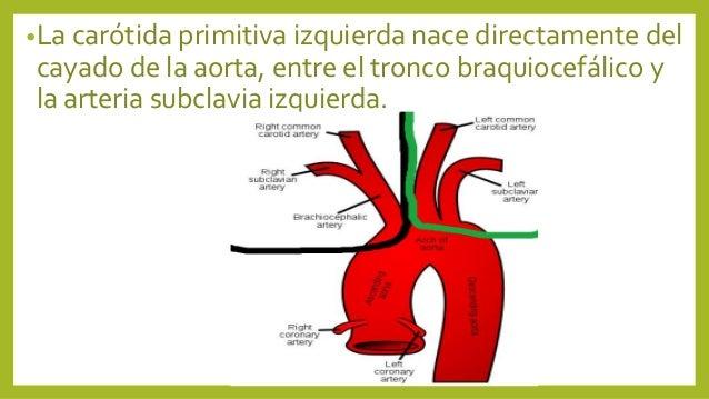 Arteria carotida primitiva (anatomia humana) 2do cuatri