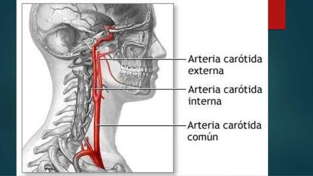 Arteria carótida interna