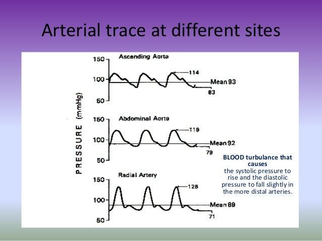 Art Line Underdamped : Arterial line analysis