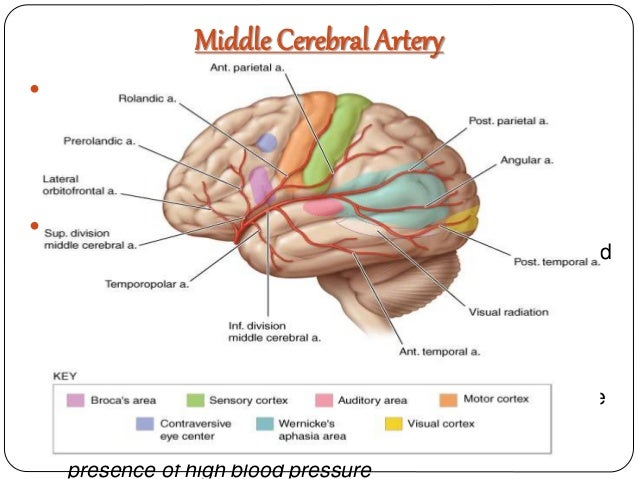 Middle cerebral artery (MCA) infarct | Radiology Reference Article ...