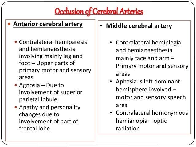 Arterial Supply Of Brain 56929260 on Embolic Vs Thrombotic Stroke