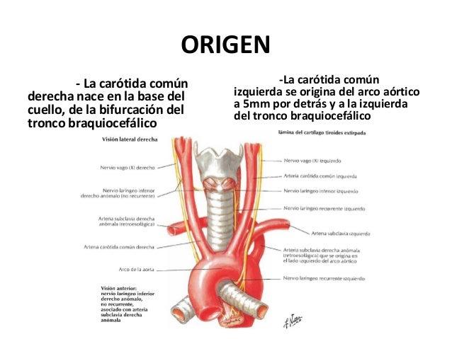 Arterias carótidas comunes