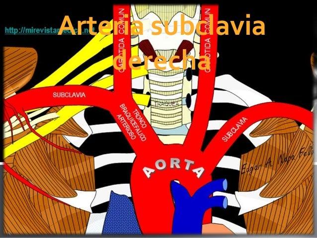 Arteria subclaviaderecha