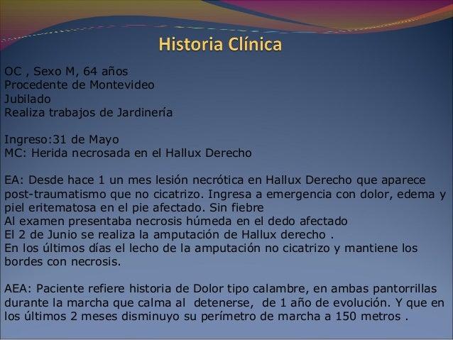 La heparina para la profiláctica de las trombosis