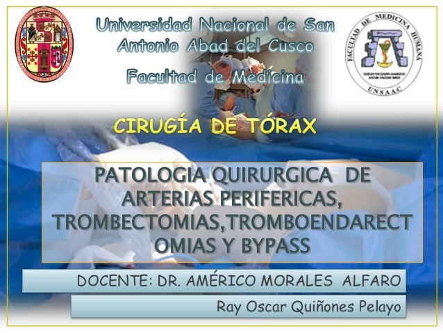 PATOLOGIA QUIRURGICA DEARTERIAS PERIFERICAS,TROMBECTOMIAS,TROMBOENDARECTOMIAS Y BYPASSDOCENTE: DR. AMÉRICO MORALES ALFAROR...