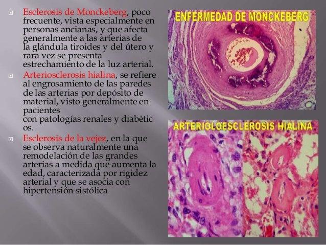 atherosclerosis de monckeberg pdf