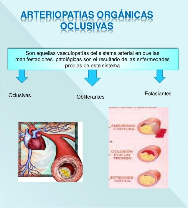 Arteriosclerosis Slide 2
