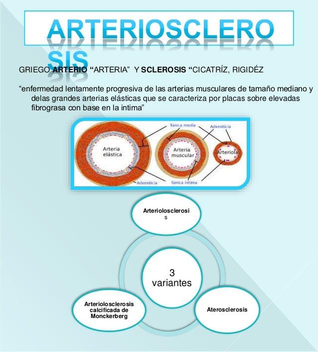 Arteriosclerosis Slide 3