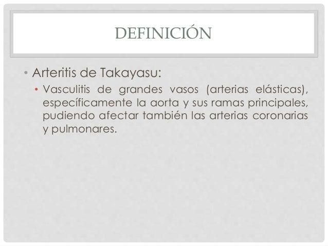 Arteritis de takayasu. Definici n causas s ntomas y tratamiento