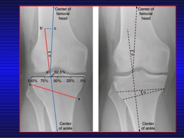 Medial Opening Wedge High Tibial Osteotomy