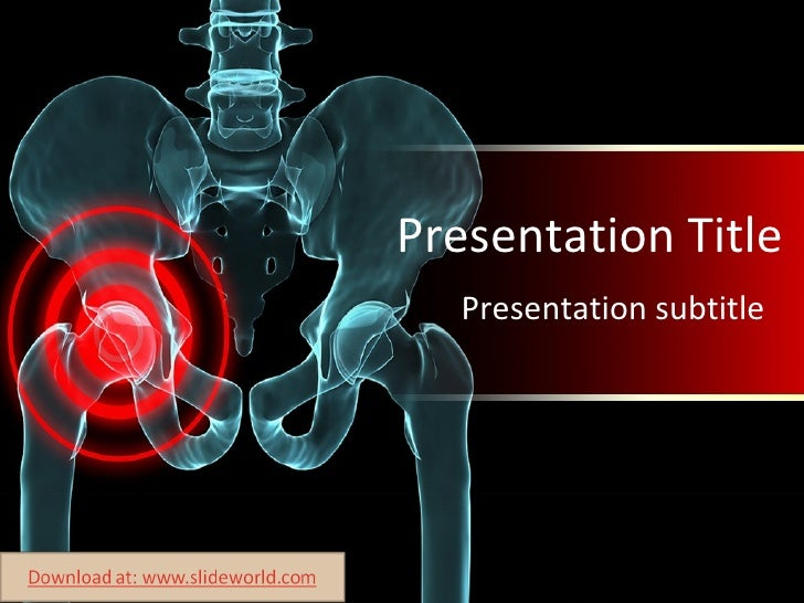 Arthritis powerpoint template arthritis powerpoint template presentation title presentation subtitle toneelgroepblik Choice Image