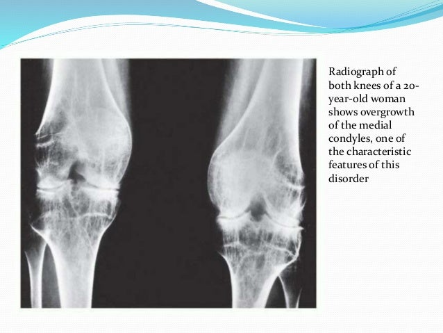 https://image.slidesharecdn.com/arthritis-160224141146/95/radiological-evaluation-of-arthritis-49-638.jpg?cb=1456335565