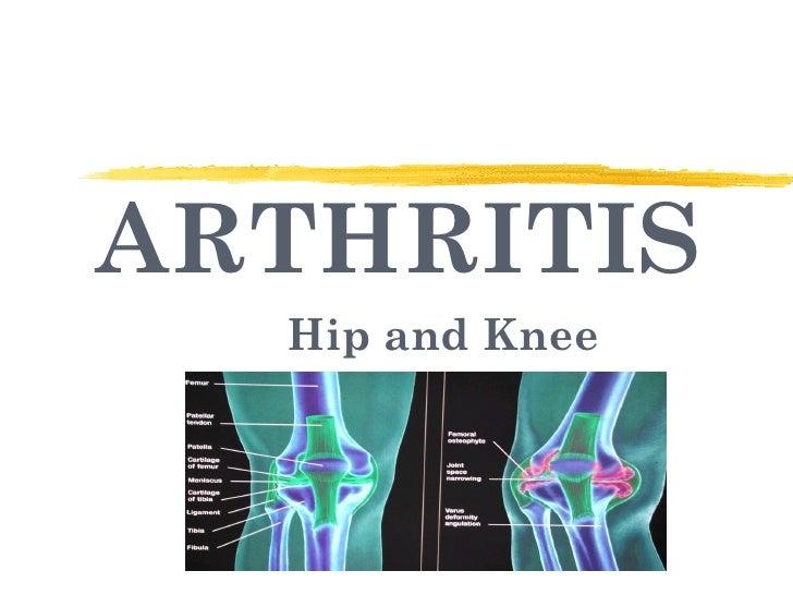 ARTHRITIS Hip and Knee