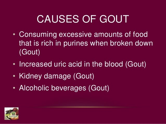 gouty arthritis flare gout pain relief pills home remedies for pseudo gout