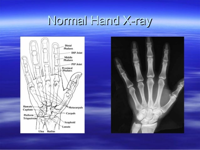 first symptoms rheumatoid arthritis 2017   2018 cars reviews
