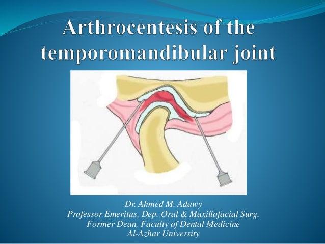 Arthrocentesis Of The Temporomandibular Joint