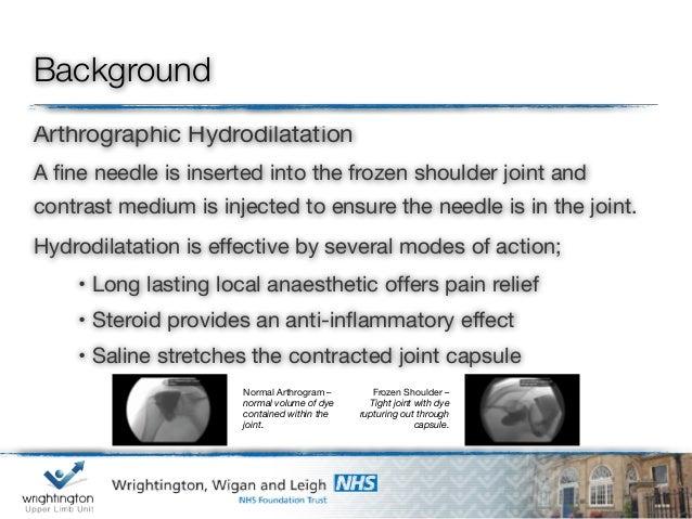 Arthrographic hydrodilatation for frozen shoulder Slide 2