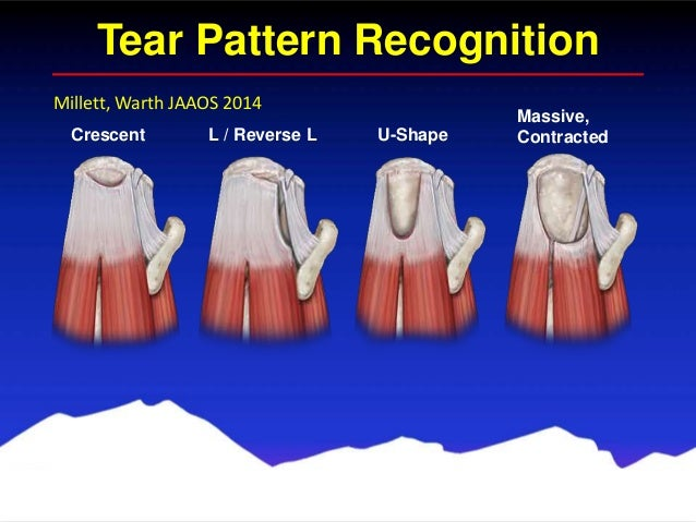 functional mri in mapping with Arthroscopic Rotator Cuff Repair Colorado Shoulder Specialist Vail Co on Chrt brain further Brain Science 3 How Do We Taste together with Brain Function Areas Structure Map moreover Bmjqs 2012 001712 further Brain Anatomy.