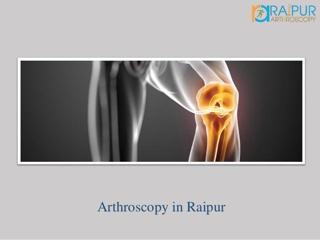 Arthroscopy in Raipur