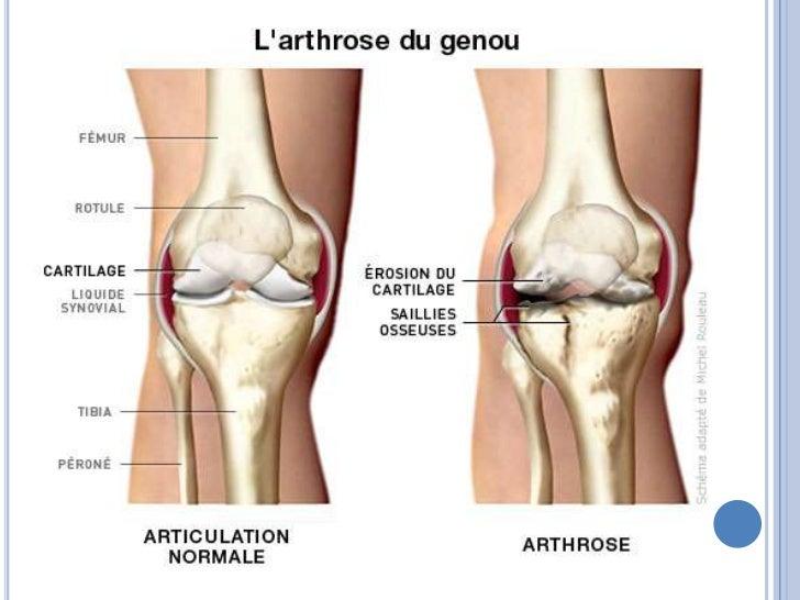 Avis Boswellia - Arthrite - Troubles osseux, articulaires et musculaires ...