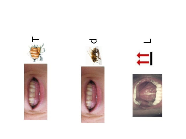 Articulaciones Slide 3