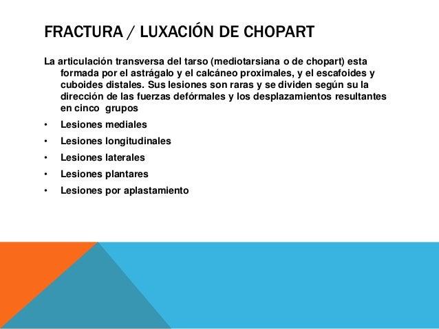 FRACTURA / LUXACIÓN DE CHOPART