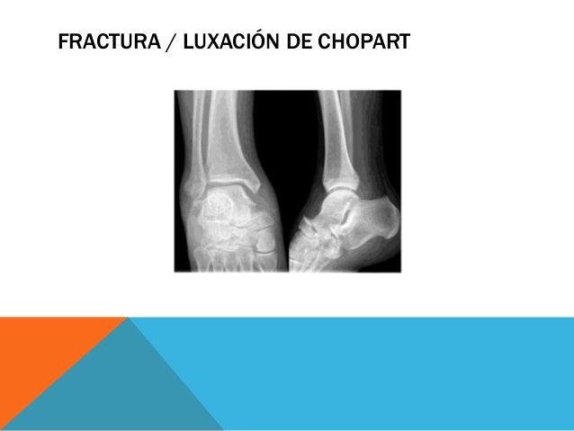 CUNEONAVICULAR Es la articulación entre los huesos cuneiforme y navicular es una sinovial plana. Esta articulación present...