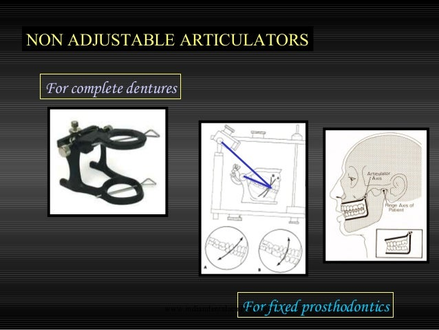 Straight Line Articulator : Articulators cosmetic dentistry training