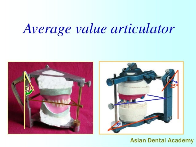 Articulators in complete dentures by asiandentalacademy average value articulator 30 25 5 asian dental academy ccuart Images