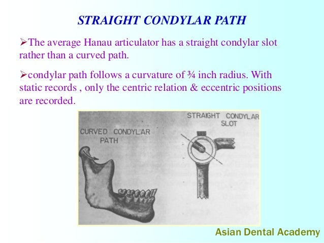 Straight Line Articulator : Articulators in complete dentures by asiandentalacademy
