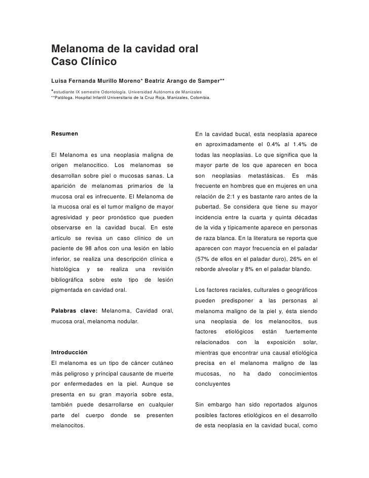 Melanoma de la cavidad oralCaso ClínicoLuisa Fernanda Murillo Moreno* Beatriz Arango de Samper***estudiante IX semestre Od...