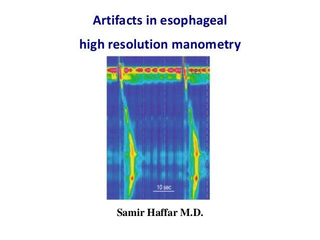Artifacts in esophageal high resolution manometry Samir Haffar M.D.