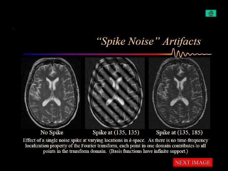 Artifacts in MRI