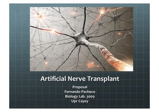 Artifical nerves transplant