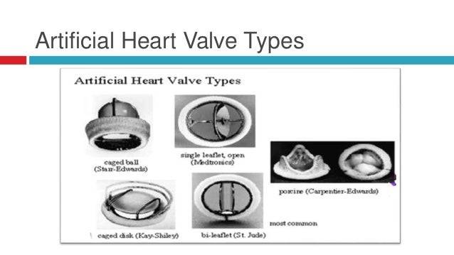 artificial hearts essay