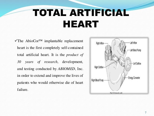 totally artificial heart Doctors at beilinson give 63-year-old man who suffered from severe cardiac  insufficiency and developed organ failure artificial heart.