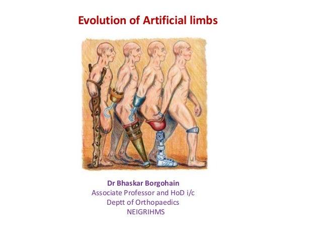 Evolution of Artificial limbs  Dr Bhaskar Borgohain Associate Professor and HoD i/c Deptt of Orthopaedics NEIGRIHMS