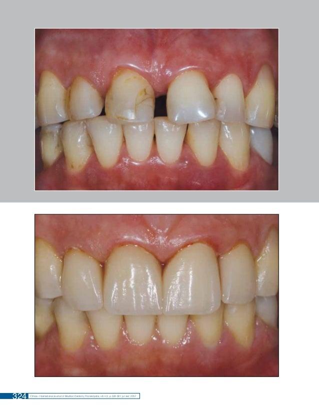 RESOLUÇÃO ESTÉTICA: NATURALIDADE COM COROAS CERÂMICAS  324  Clínica - International Journal of Brazilian Dentistry, Floria...