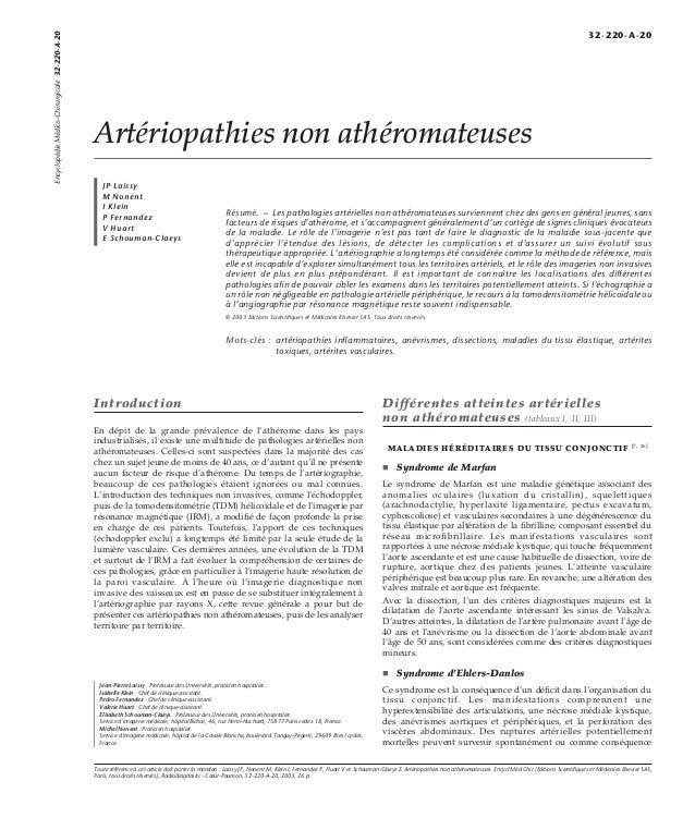 Artériopathies non athéromateuses  JP Laissy  M Nonent  I Klein  P Fernandez  V Huart  E Schouman-Claeys  Résumé. – Les pa...