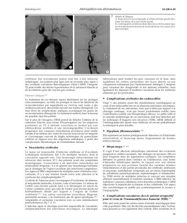 Artériopathies non athéromateuses