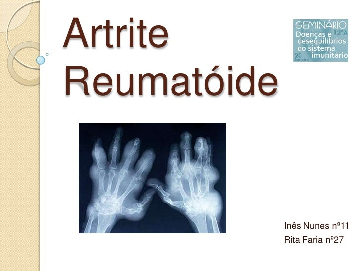 Artrite Reumatóide <br />Inês Nunes nº11<br />Rita Faria nº27<br />