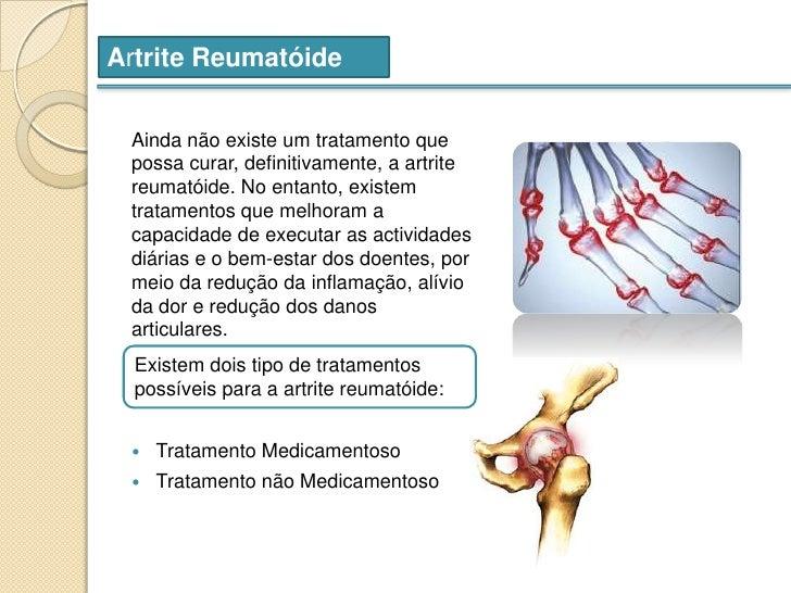 tratamentul ocular al artritei reumatoide