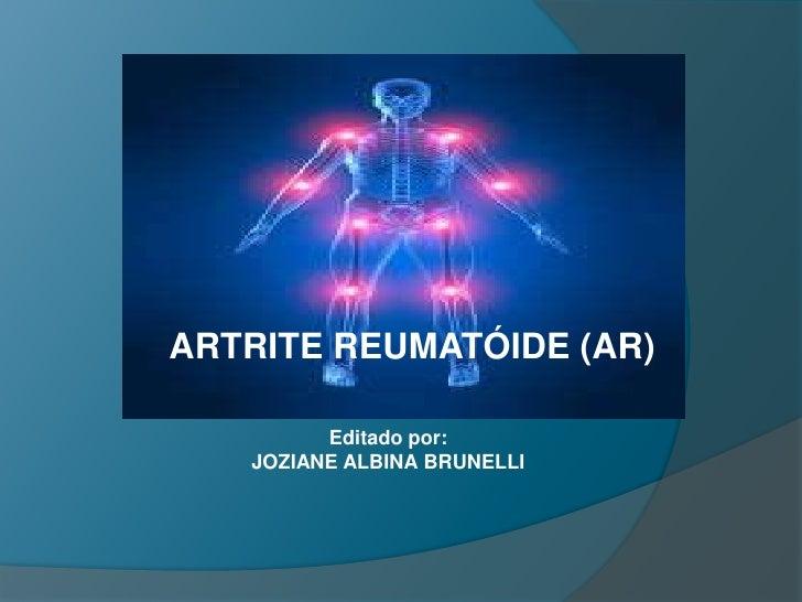 ARTRITE REUMATÓIDE (AR)<br />Editado por:<br />JOZIANE ALBINA BRUNELLI<br />