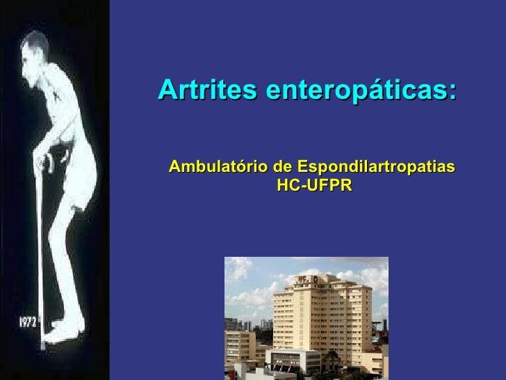 Artrites enteropáticas:   Ambulatório de Espondilartropatias  HC-UFPR